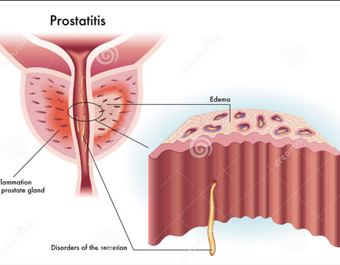 Attacking all the male age groups bizarrely. Prostatitis.