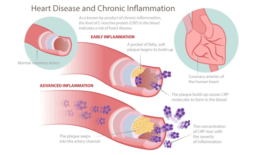 Symptoms of chronic inflammation
