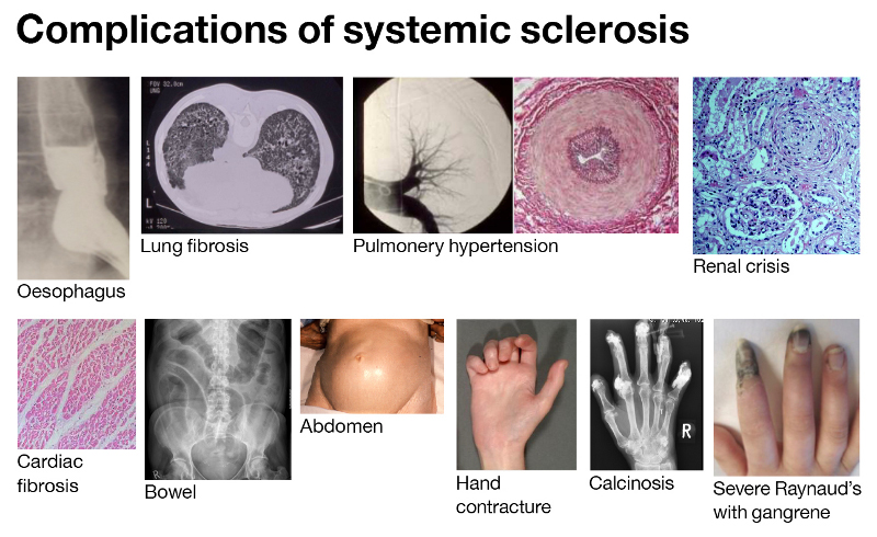 Systemic sclerosis or scleroderma