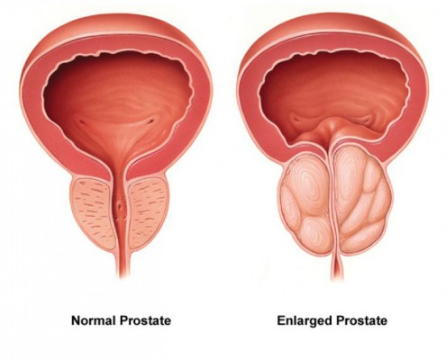 Patients with Benign Prostatic Hyperplasia