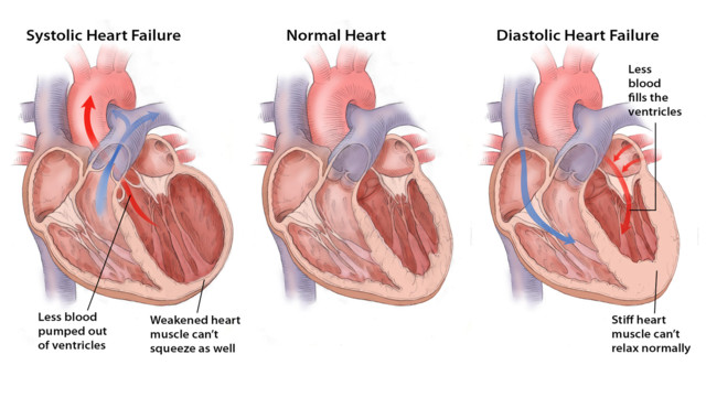 Treatment of Heart Failure
