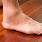 Causes for Swollen Ankles Feet and Legs