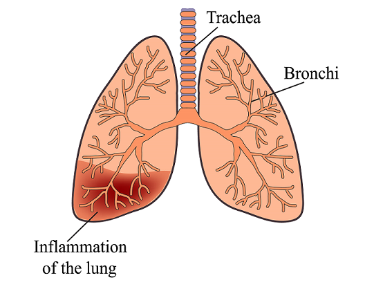 Bactrim for pneumonia1