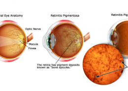 Erectile-Dysfunction-in-Patients-with-Retinitis-Pigmentosa
