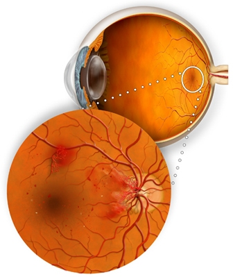 Retinitis Pigmentosa-Etiology, Symptoms, Treatment and On-Going Research