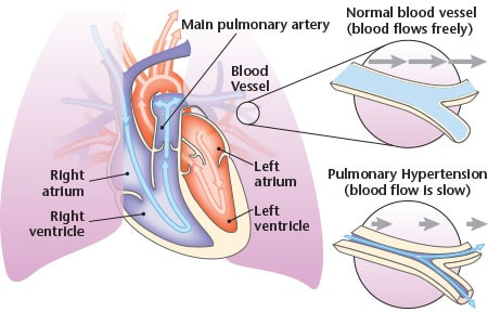 Viagra-May Harm Patients with a Heart Valve Issue