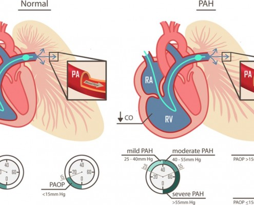 What is pulmonary arterial hypertension?